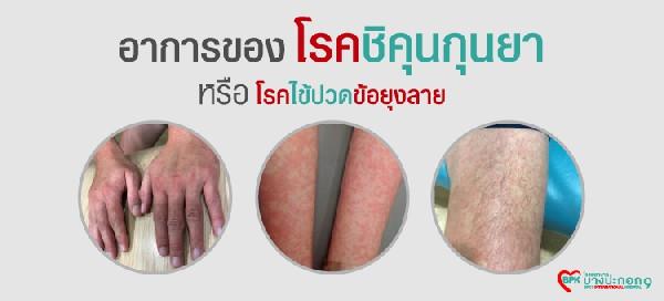 โรคชิคุนกุนยา หรือ โรคไข้ปวดข้อยุงลาย